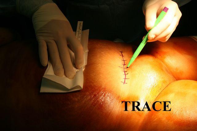hystérectomie abdominale convalescence